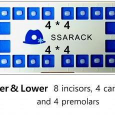 Ssarack Upper & Lower 4*4 Set (16ea)